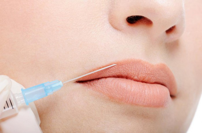 Lip filling