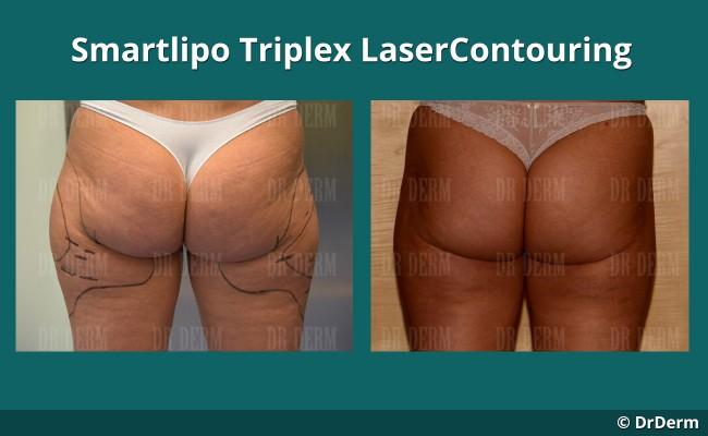lasercontouring_new_1_1
