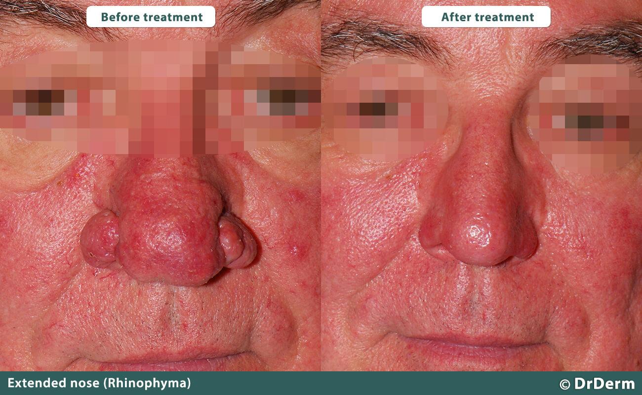 Rhinophyma Nose Shaping Dr Derm Borgyogyaszati Anti Aging Kozpont Esztetikai Lezer Plasztikai Sebeszet