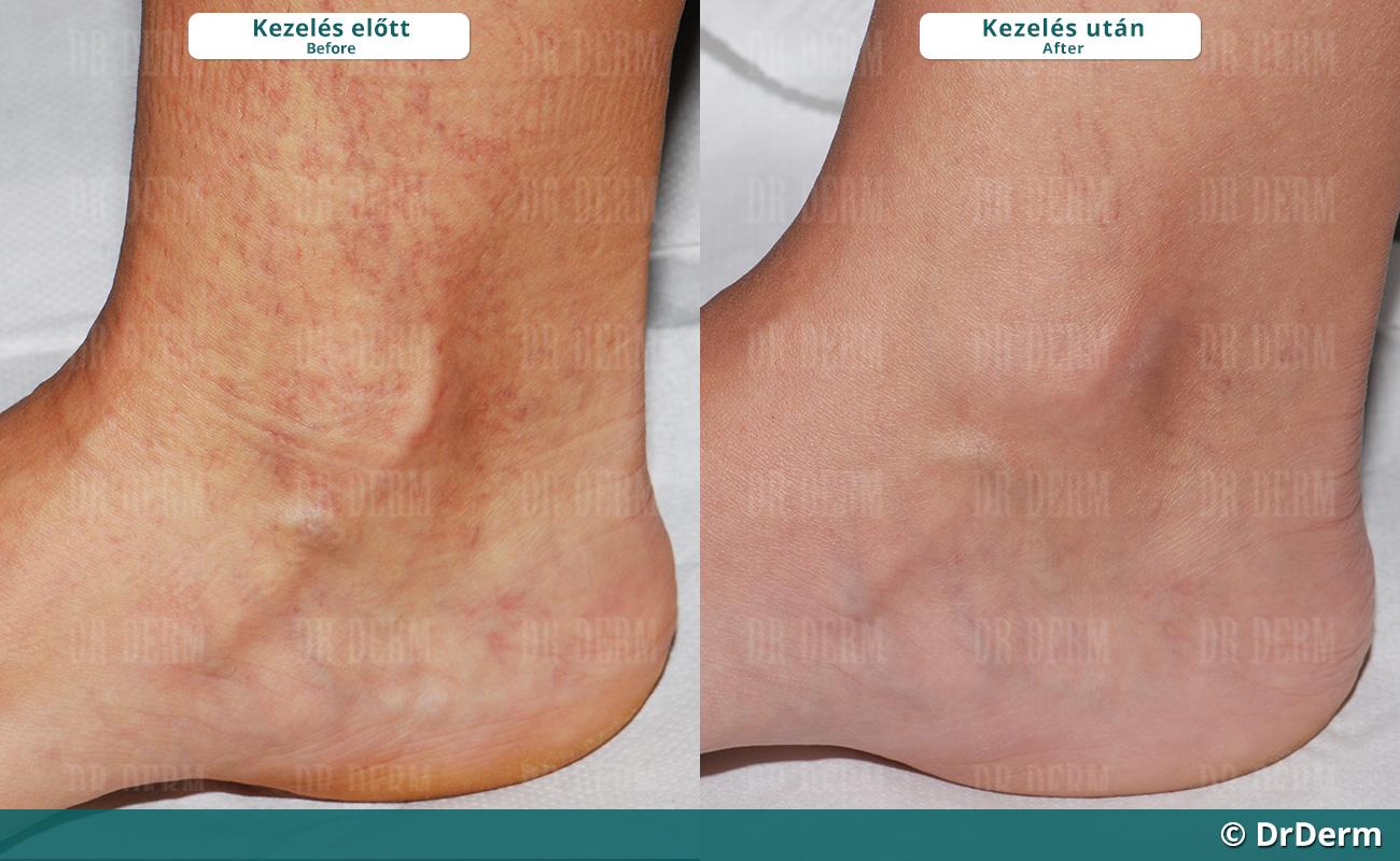 varicose veins ankle