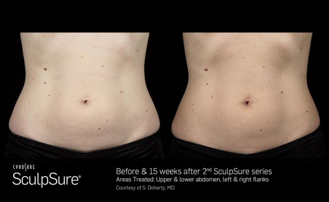sculpsure_10_resized
