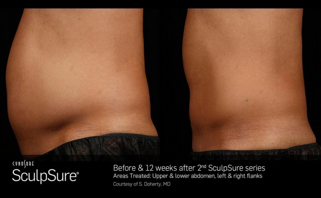 sculpsure_12_resized