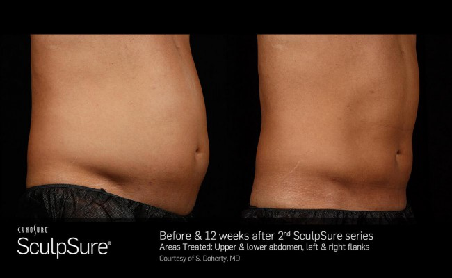sculpsure_13_resized