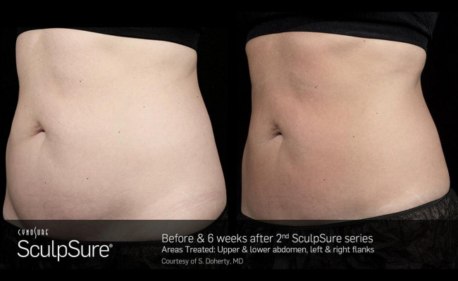 sculpsure_15_resized