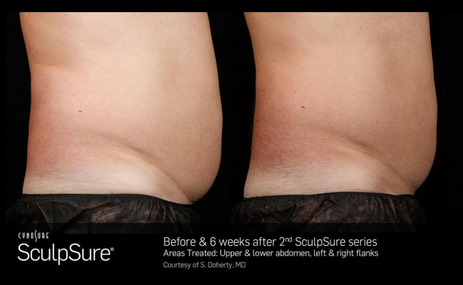 sculpsure_16_resized