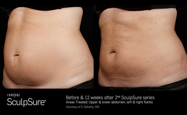 sculpsure_18_resized