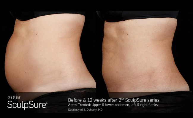sculpsure_19_resized