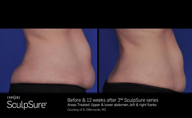 sculpsure_1_resized