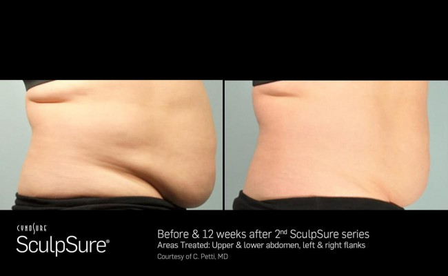 sculpsure_2_resized
