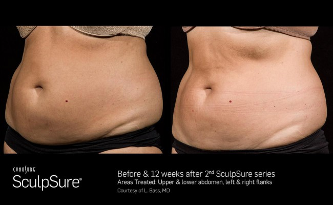 sculpsure_6_resized