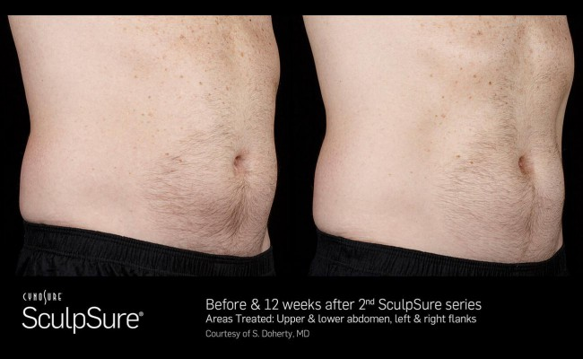 sculpsure_9_resized