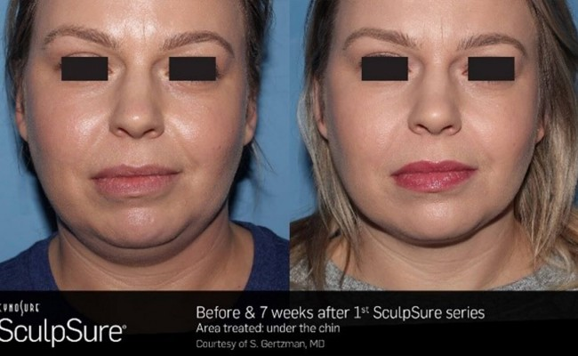 sculpsure_submental_1