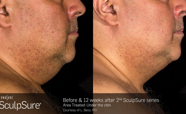sculpsure_submental_3
