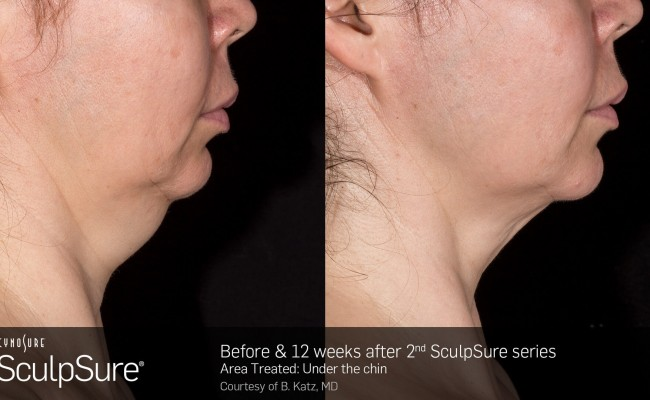sculpsure_submental_4